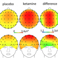 Ketamine Alters Functional Gamma and Theta Resting-State Connectivity in Healthy Humans: Implications for Schizophrenia Treatment Targeting the Glutamate System
