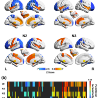 Functional connectivity of the human hypothalamus during wakefulness and nonrapid eye movement sleep