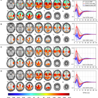 Blind Visualization of Task-Related Networks From Visual Oddball Simultaneous EEG-fMRI Data: Spectral or Spatiospectral Model?